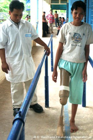 Junge mit Beinprothese